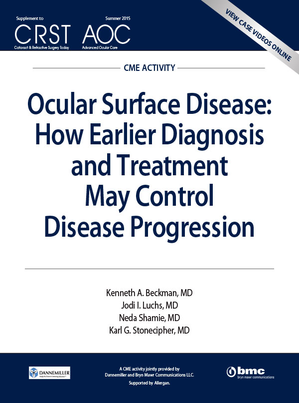 Ocular Surface Disease: How Earlier Diagnosis and Treatment May Control Disease Progression