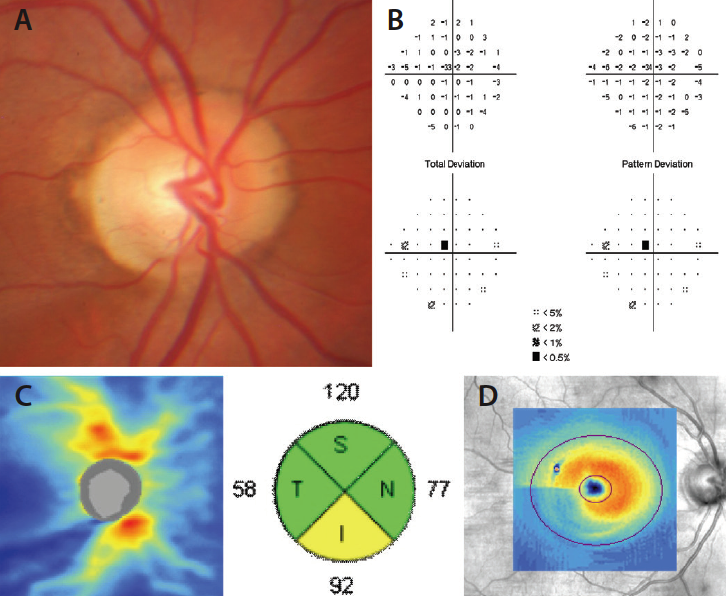 Glaucoma Today - RNFL Analysis in the Diagnosis of Glaucoma