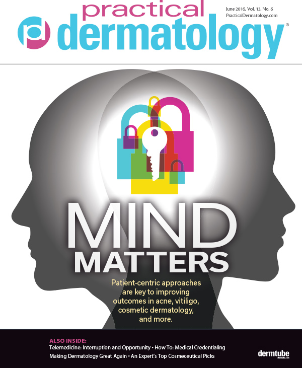 Practical Dermatology - Solving the Vitiligo Puzzle (June 2016)