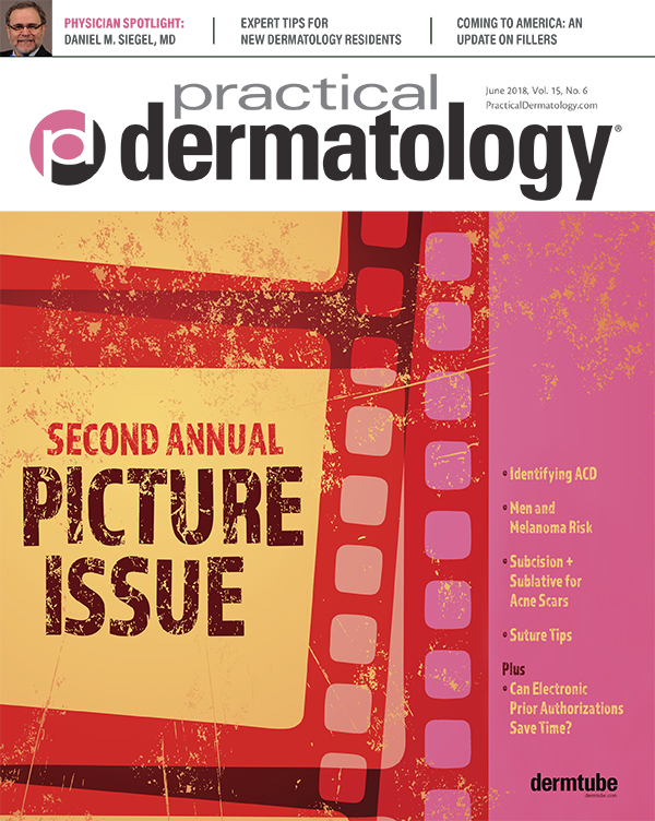 Practical Dermatology - Filling Us In: A Global View of Fillers