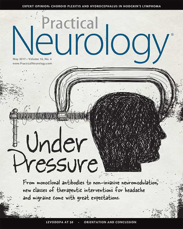 Practical Neurology - Monoclonal Antibodies and Migraine: What the