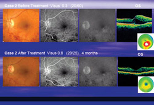 Digital Supplement Tissue Sparing Micropulse Diode Laser